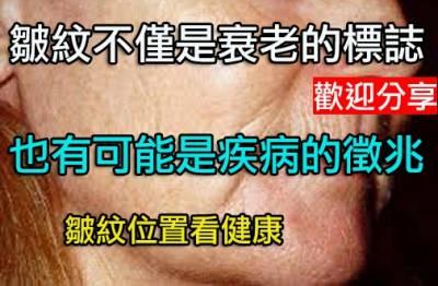 皺紋位置看健康:在眼周關注情緒在臉頰少吃鹽