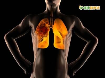 肺結核好恐怖! 前段防治如何做?