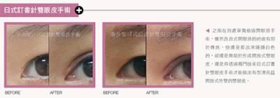 開放式雙眼皮不等於開眼頭!