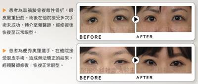 期待明眸重生 重修雙眼皮手術