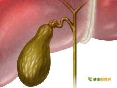 膽結石有F4 中醫師教導如何預防