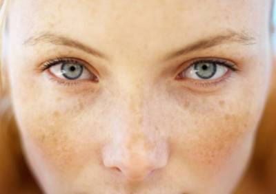 妳是「黃臉婆」嗎?女人皮膚「3種疾病」千萬要小心,臉色差問題竟出在卵巢!