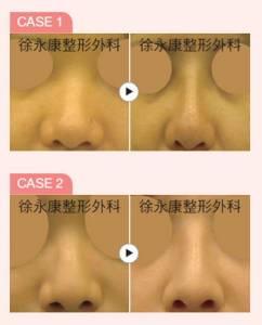 明星級美鼻締造術 日式隆鼻