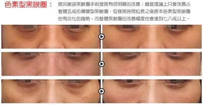 色素型黑眼圈治療現況與展望