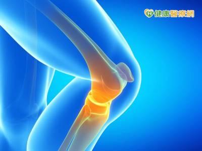 年輕人也有退化性關節炎 應及早「肌」極運動