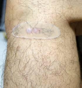 SureMed舒利渼人工皮超薄型傷口隱形貼,特薄 超細柔 超服貼,防水 透氣最長可貼5天,洗水游泳都OK