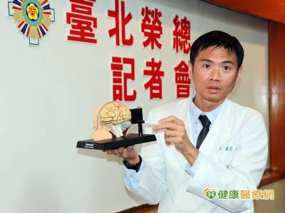 腦部廔管治療更安全 血管攝影評估免後遺症