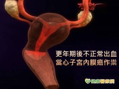 更年期後不正常出血 當心子宮內膜癌作祟