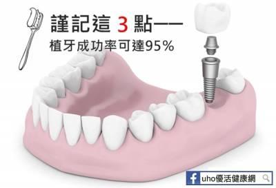 謹記3點 植牙成功率可達95%