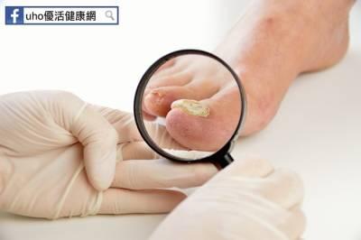 灰指甲擦藥沒效?恐為乾癬作祟