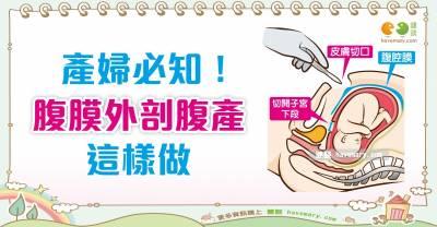什麼是腹膜外剖腹產?|媽媽族 生產篇3