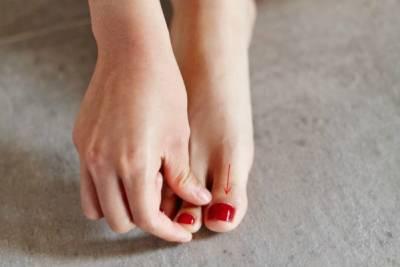 夏天腿部容易水腫怎麼辦?三步驟讓你一掃暑氣腫脹!
