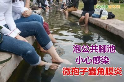泡公共腳池 小心感染微孢子蟲角膜炎