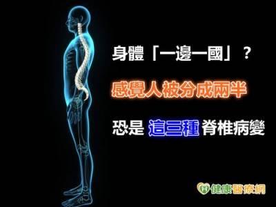 身體一邊一國? 三種脊椎病變造成