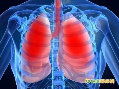 肺癌奪死十年冠! 不可逆標靶納健保 贏在起跑點