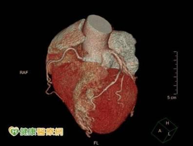 心臟病高居台灣第二大死因!「心肌梗塞高危險群」更容易一下斃命,醫師建議:切記「硝化甘油」不離身