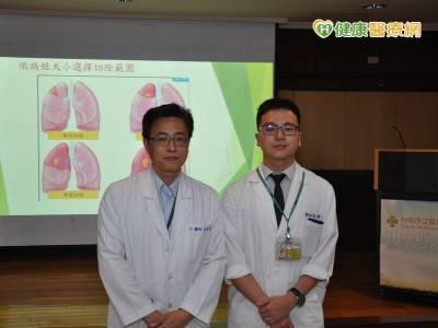 LDCT肺癌篩檢利器 健保有條件給付
