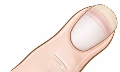 如果你的指甲「呈現這種狀況」,你最好不要耽擱「立刻去找醫生檢查」!