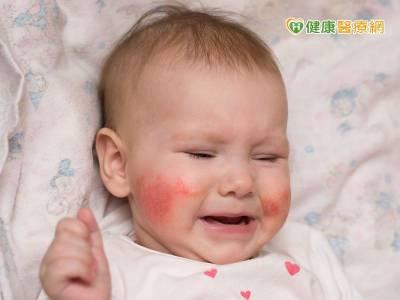 異位性皮膚炎 嬰兒期就會發病?!