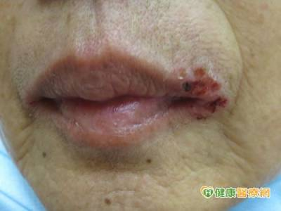 張口嘴角就滲血 原來是唇皰疹惹禍