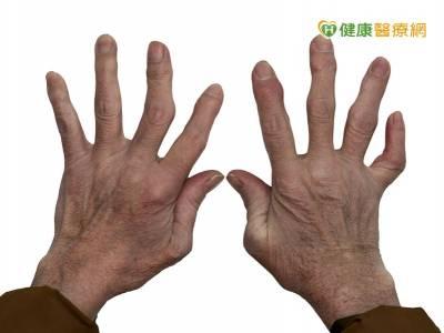 類風濕關節炎易有肌少症 伸展運動可防範