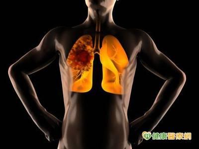 虛擬支氣管鏡導航定位 胸腔鏡手術更精準