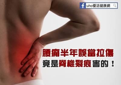 腰痛半年誤當拉傷 竟是脊椎裂痕害的!