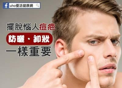 打敗痘痘,需耐心治療4~6個月!擺脫惱人痘疤,防曬卸妝一樣重要...