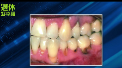 老了,就一定會掉牙嗎?!3個關鍵,搞懂掉牙主因...