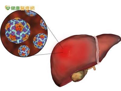 感染C肝病毒 糖尿病風險增