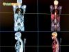 4D電腦斷層掃描儀 讓腫瘤無所遁形