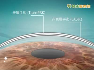 近視雷射手術夯 角膜厚度影響安全性