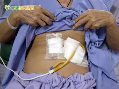 30萬國人咀嚼吞嚥障礙 營養照護怎麼做?