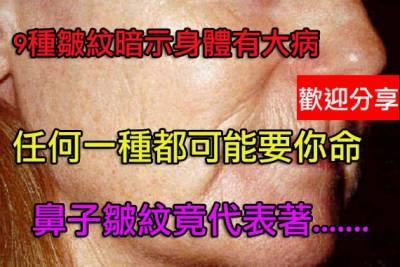 9種皺紋暗示身體有大病鼻皺紋繫心臟不好