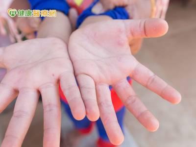 學童衛生健康拉警報 小心「腸病毒」入侵
