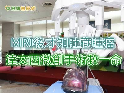 MRI後才知肚藏腫瘤 達文西微創手術救一命