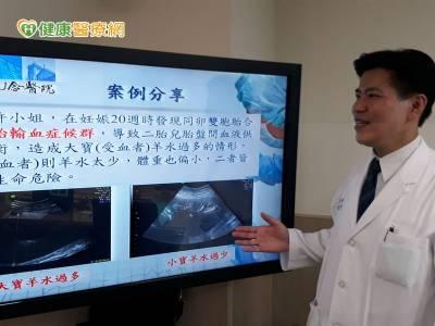 胎兒鏡雷射電燒 成功救治雙胞胎輸血症候群