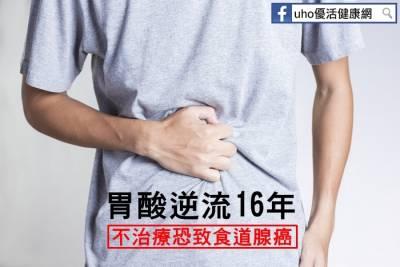 胃酸逆流16年 不治療恐致食道腺癌