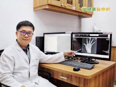 手指關節疼痛別輕忽 小心類風濕性關節炎上身