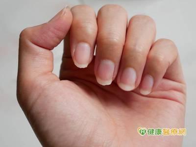 指甲出現異常 這五徵兆恐為乾癬