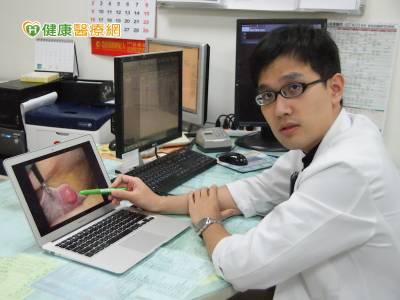 微創腹腔鏡手術 治療肝癌成效佳