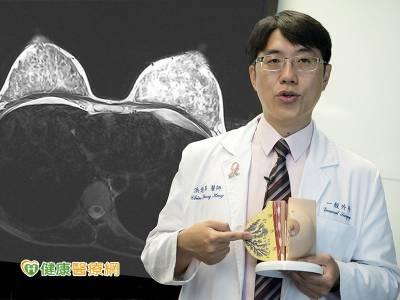 達文西乳癌手術再進化 乳房全切傷口小