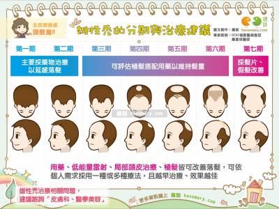 雄性禿的分期與治療建議 全民愛健康 頭髮篇8