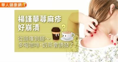 楊謹華蕁麻疹好崩潰,從頭癢到腳〜多喝咖啡 奶茶會誘發?
