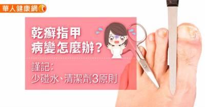 乾癬指甲病變怎麼辦?謹記:少碰水 清潔劑3原則