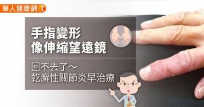 手指變形像伸縮望遠鏡回不去了〜乾癬性關節炎早治療