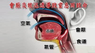 只是發燒喉嚨痛竟收到病危通知?這種喉嚨痛不能等