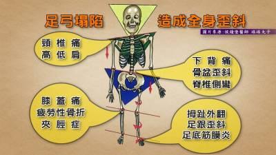腰痠背痛治不好竟是足弓造成骨盆歪斜