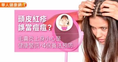 頭皮紅疹誤當痘痘?毛囊炎上身小心是健康警訊,4保養法預防