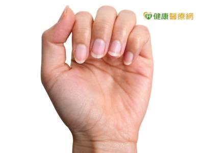 癌症治療副作用惱人 皮膚指甲緩解有招!